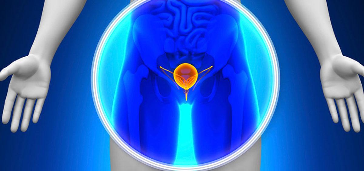 pruebas para diagnosticar el cáncer de próstata
