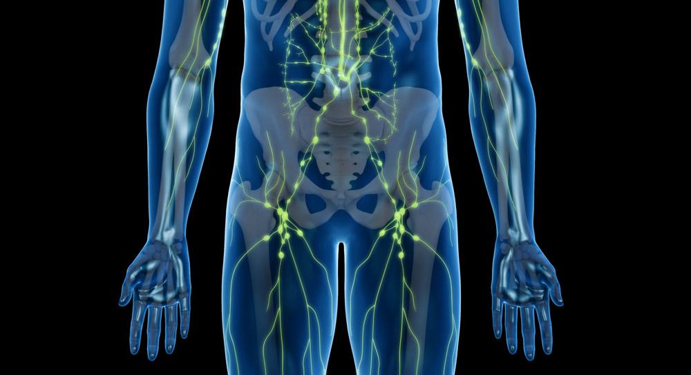 extirpación del cáncer de próstata de los ganglios linfáticos