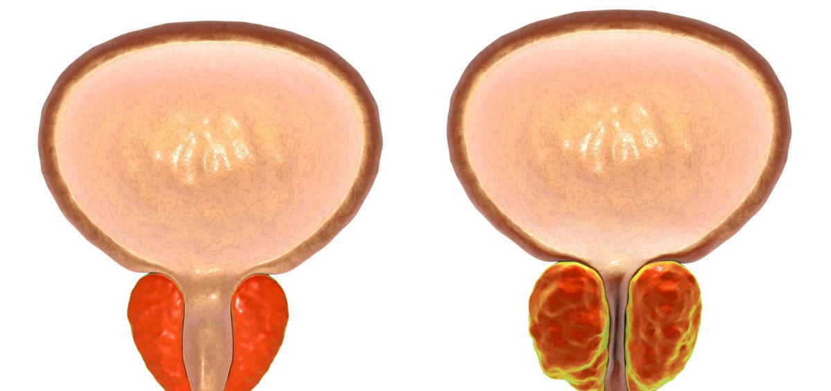 Hiperplasia-Benigna-Prostata